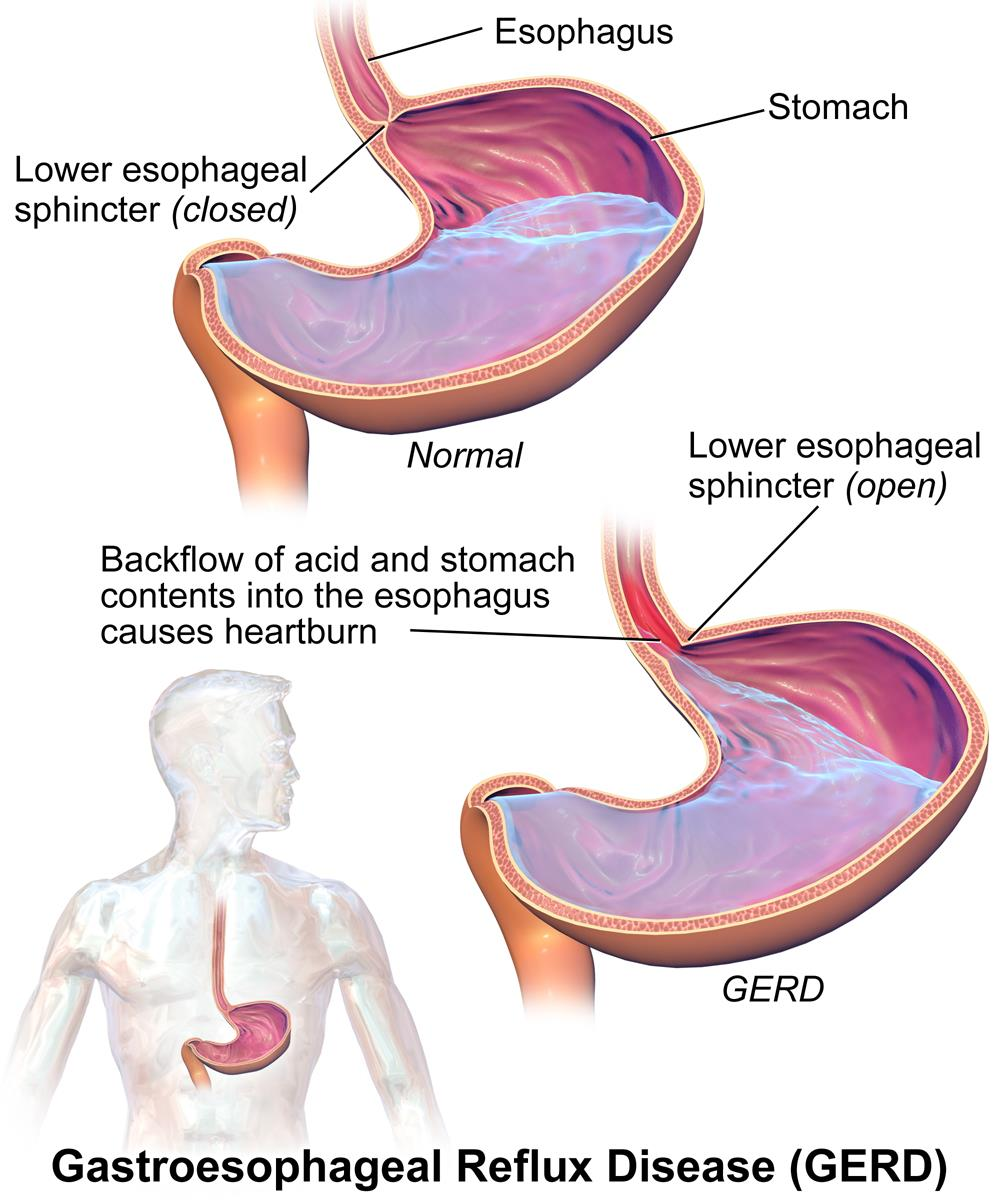 Acid Reflux - Symptoms and Common causes